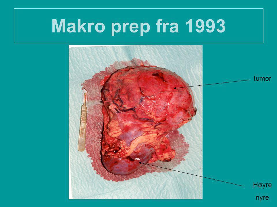 Makro prep fra 1993 tumor Høyre nyre