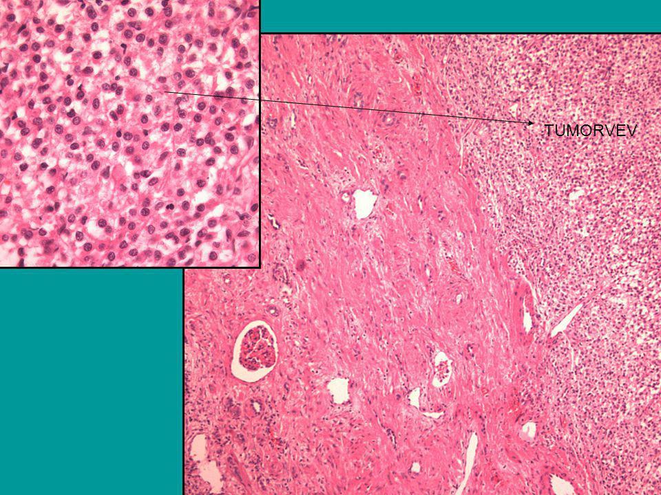 Pasientens forløp Residivfri i ca 10 år Oppfølges av sarkomgruppen Siste postoperative kontroll (10.11.05) etter 10 mnd: - Klinisk i god form - CT abdomen/ bekken: Ingen patol.