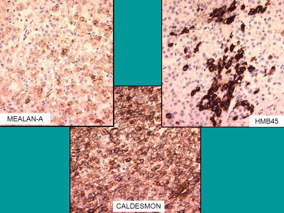 CALDESMON MEALAN-A HMB45