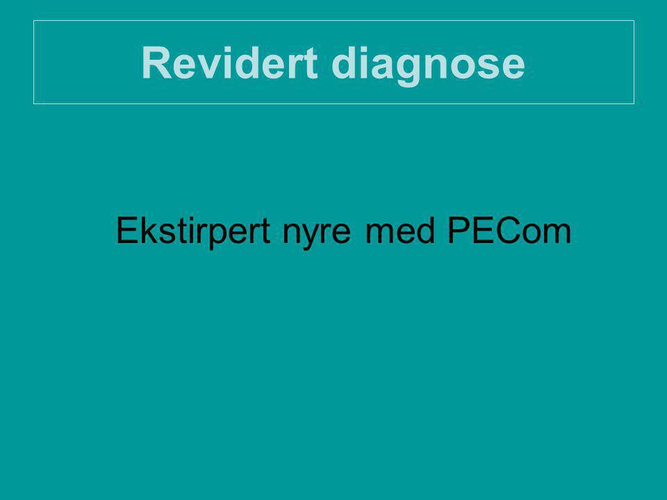 Revidert diagnose Ekstirpert nyre med PECom