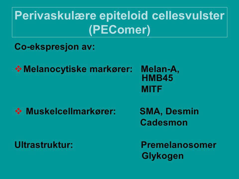 Perivaskulære epiteloid cellesvulster (PEComer) Co-ekspresjon av:  Melanocytiske markører: Melan-A, HMB45 MITF  Muskelcellmarkører: SMA, Desmin Cadesmon Ultrastruktur: Premelanosomer Glykogen