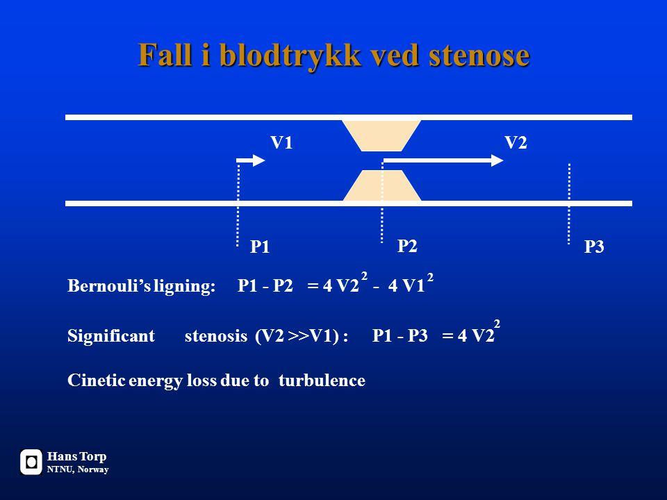 Fall i blodtrykk ved stenose V1V2 P1 P2 Bernouli's ligning: P1 - P2 = 4 V2 - 4 V1 2 2 Significant stenosis (V2 >>V1) : P1 - P3 = 4 V2 Cinetic energy loss due to turbulence P3 2 Hans Torp NTNU, Norway
