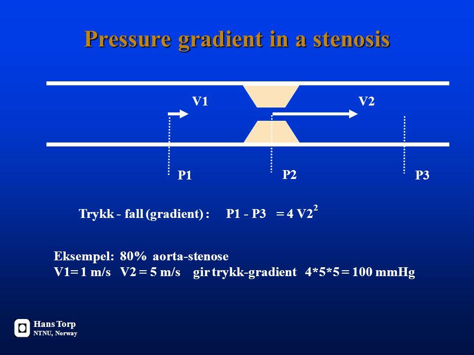 Pressure gradient in a stenosis V1V2 P1 P2 Trykk - fall (gradient) : P1 - P3 = 4 V2 P3 2 Eksempel: 80% aorta-stenose V1= 1 m/s V2 = 5 m/s gir trykk-gradient 4*5*5 = 100 mmHg Hans Torp NTNU, Norway