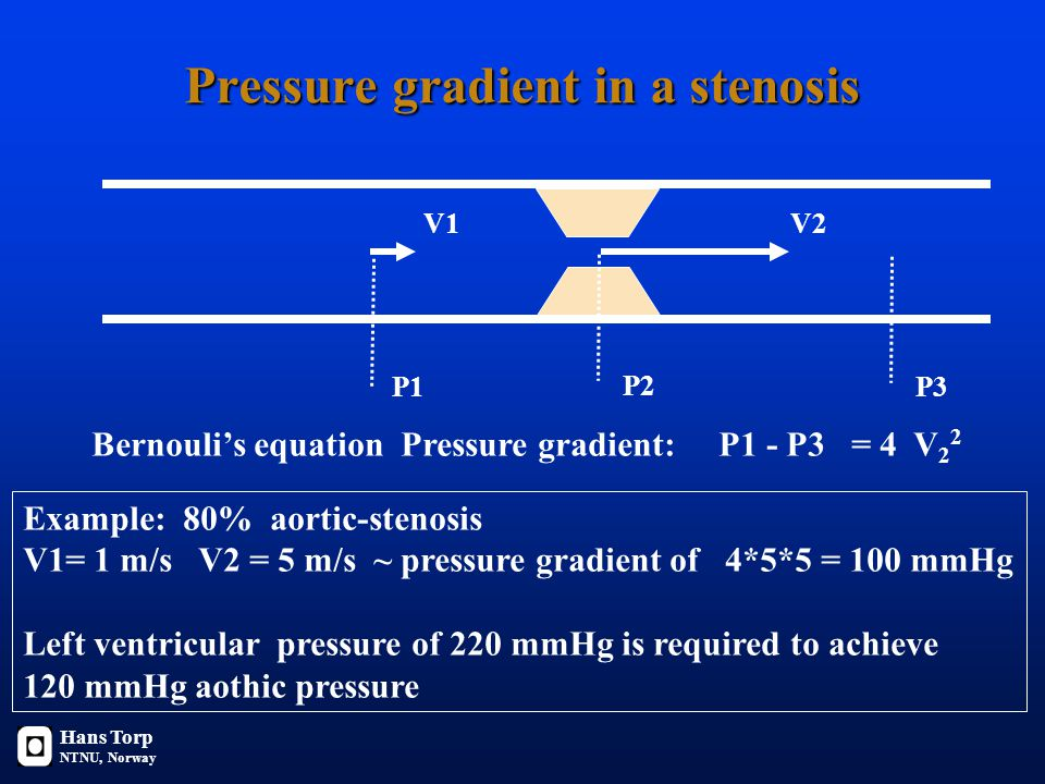 V1V2 P1 P2 Bernouli's equation Pressure gradient: P1 - P3 = 4 V 2 2 P3 Example: 80% aortic-stenosis V1= 1 m/s V2 = 5 m/s ~ pressure gradient of 4*5*5 = 100 mmHg Left ventricular pressure of 220 mmHg is required to achieve 120 mmHg aothic pressure Hans Torp NTNU, Norway Pressure gradient in a stenosis