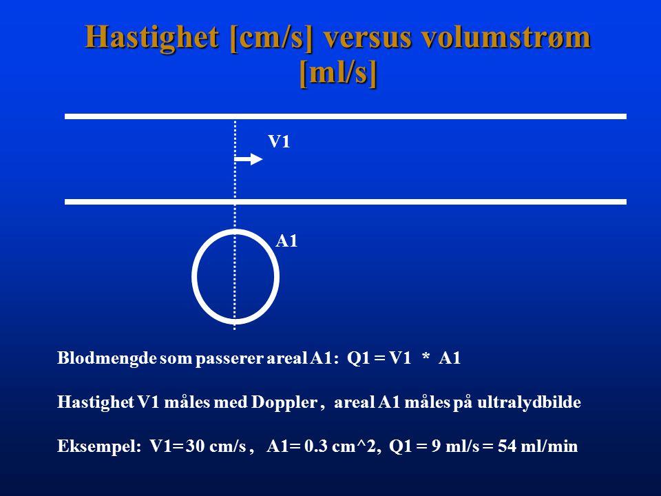 Hastighet [cm/s] versus volumstrøm [ml/s] V1 A1 Blodmengde som passerer areal A1: Q1 = V1 * A1 Hastighet V1 måles med Doppler, areal A1 måles på ultralydbilde Eksempel: V1= 30 cm/s, A1= 0.3 cm^2, Q1 = 9 ml/s = 54 ml/min
