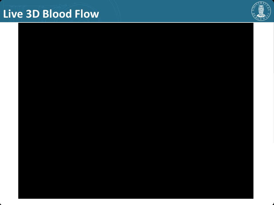 Live 3D Blood Flow