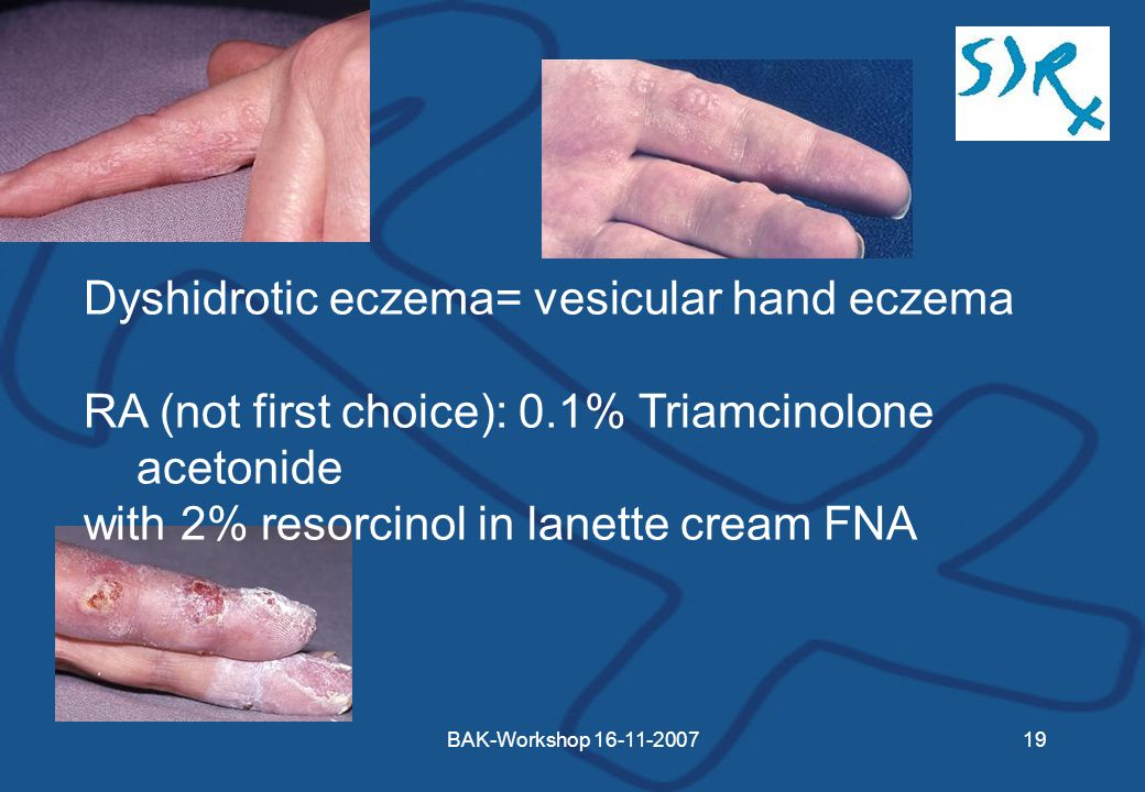 BAK-Workshop Dyshidrotic eczema= vesicular hand eczema RA (not first choice): 0.1% Triamcinolone acetonide with 2% resorcinol in lanette cream FNA