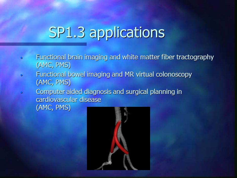 SP1.3 applications Functional brain imaging and white matter fiber tractography (AMC, PMS) Functional brain imaging and white matter fiber tractography (AMC, PMS) Functional bowel imaging and MR virtual colonoscopy (AMC, PMS) Functional bowel imaging and MR virtual colonoscopy (AMC, PMS) Computer aided diagnosis and surgical planning in cardiovascular disease (AMC, PMS) Computer aided diagnosis and surgical planning in cardiovascular disease (AMC, PMS)