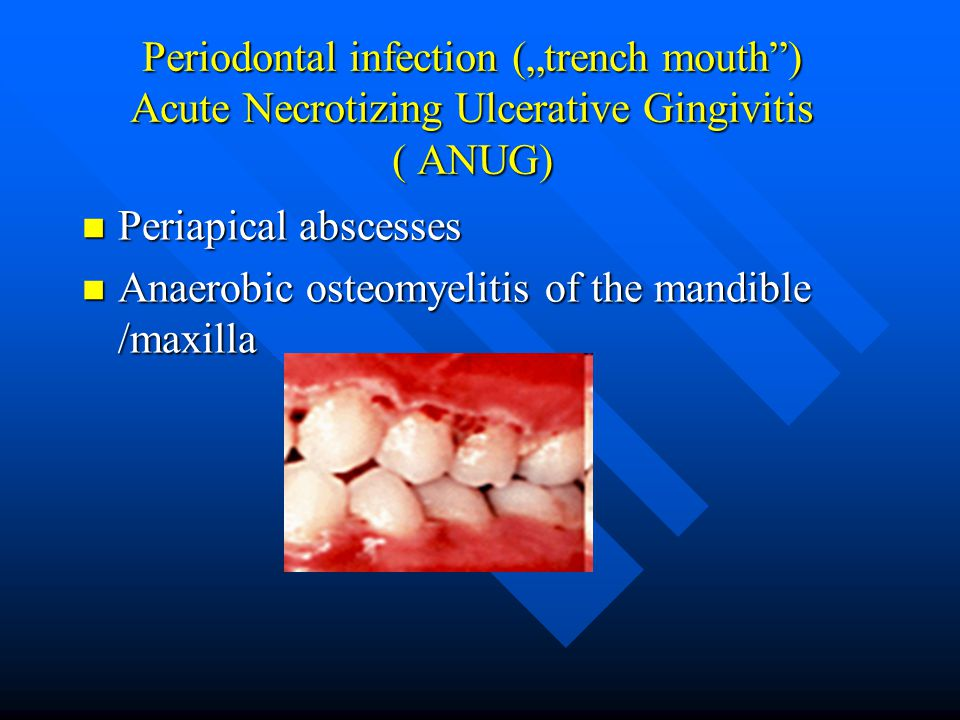 """Periodontal infection (""""trench mouth"""") Acute Necrotizing Ulcerative Gingivitis ( ANUG) Periapical abscesses Periapical abscesses Anaerobic osteomyelit"""
