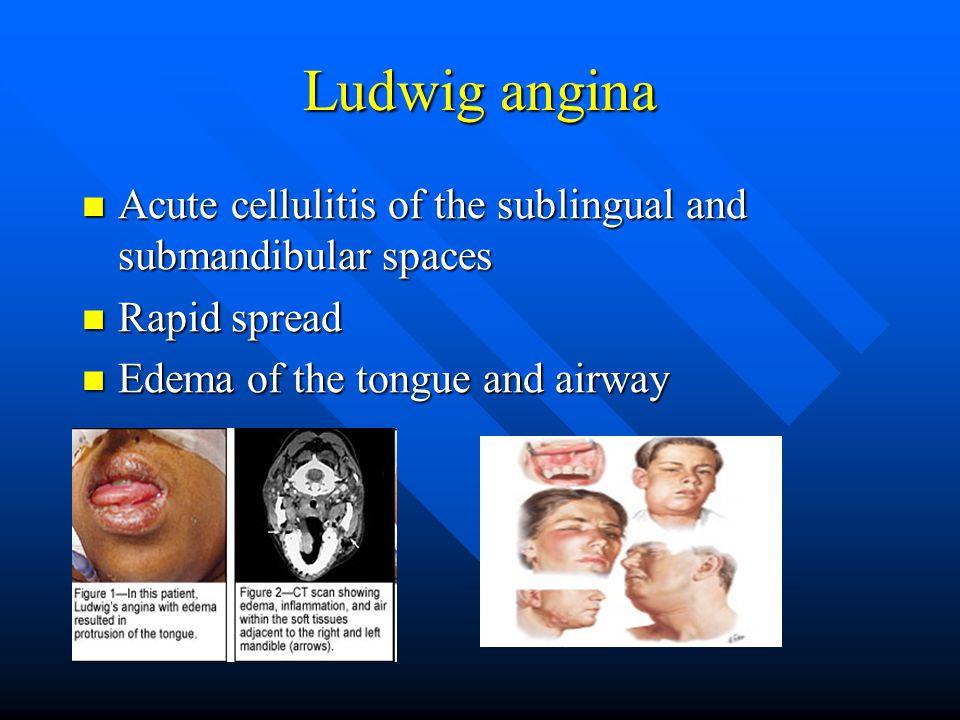 Ludwig angina Acute cellulitis of the sublingual and submandibular spaces Acute cellulitis of the sublingual and submandibular spaces Rapid spread Rap