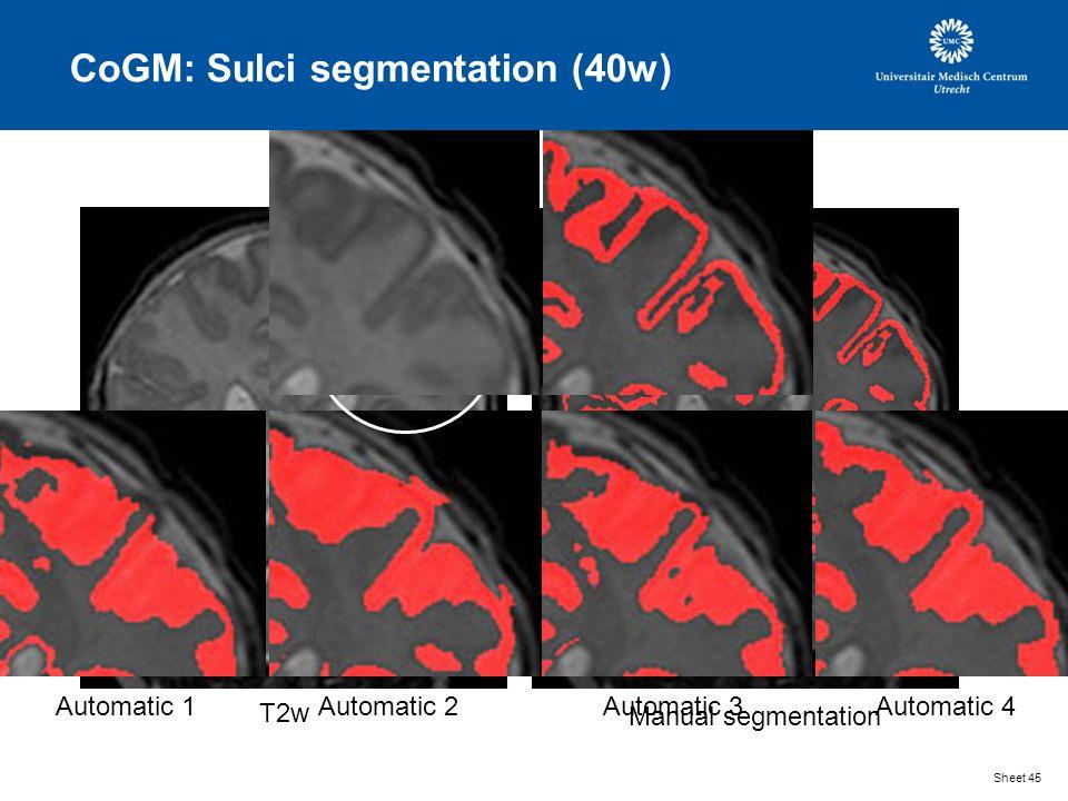 CoGM: Sulci segmentation (40w) Sheet 45 T2w Manual segmentation Automatic 1Automatic 2Automatic 3Automatic 4