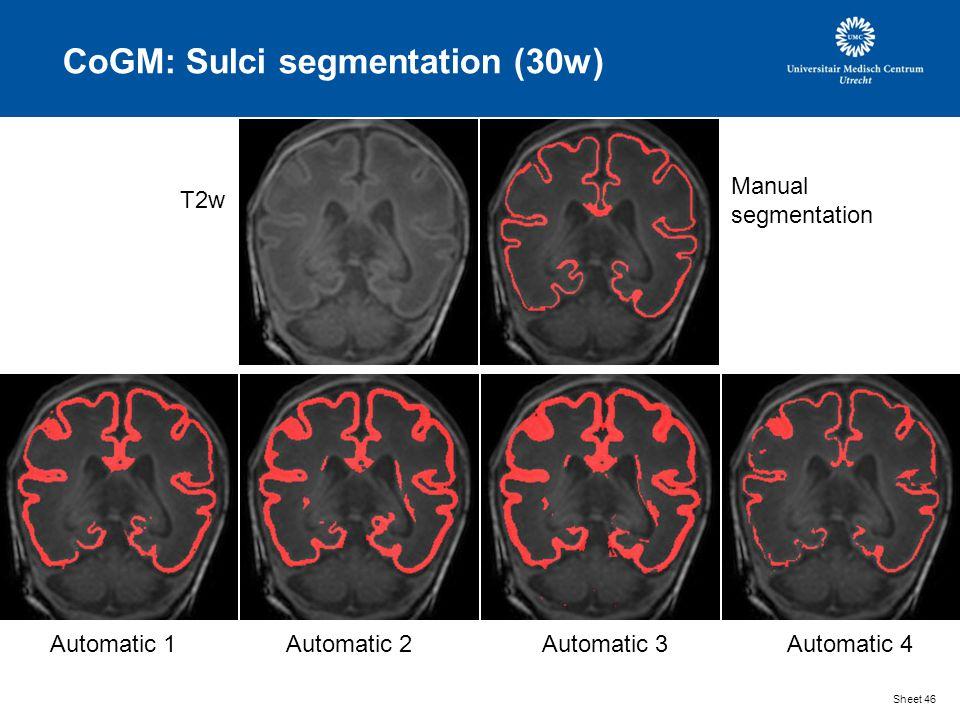 CoGM: Sulci segmentation (30w) Sheet 46 T2w Manual segmentation Automatic 1Automatic 2Automatic 3Automatic 4