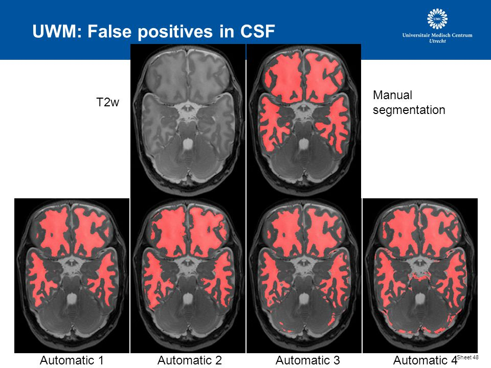 UWM: False positives in CSF Sheet 48 T2w Manual segmentation Automatic 1Automatic 2Automatic 3Automatic 4