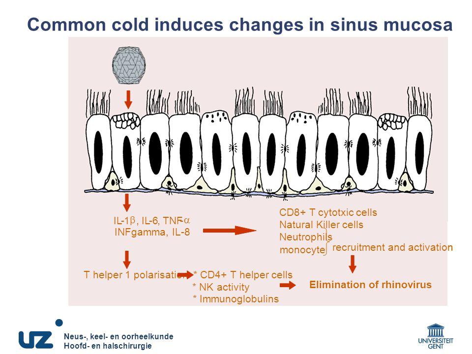 Neus-, keel- en oorheelkunde Hoofd- en halschirurgie Neus-, keel- en oorheelkunde Hoofd- en halschirurgie Common cold induces changes in sinus mucosa Virus ICAM-1 T helper 1 polarisation* CD4+ CTL * NK activity * Ig IL-1 , -6,TNF-  IL-8, MCP-1 IFN-  CD8+ CTLs NKcells neutrophil monocyte recruitment and activation Elimination of rhinovirus T helper 1 polarisation* CD4+ T helper cells * NK activity * Immunoglobulins IL-1 , -6,TNF-  INFgamma, IL-8 CD8+ T cytotxic cells Natural Killer cells Neutrophils monocyte recruitment and activation Elimination of rhinovirus