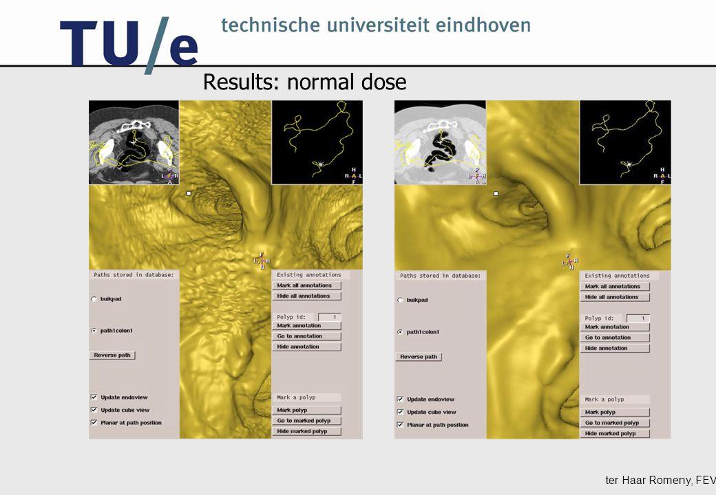 ter Haar Romeny, FEV Results: all dose levels 1.6 mAs 6.25 mAs64 mAs