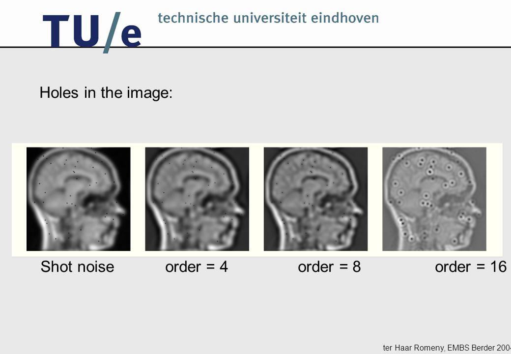 ter Haar Romeny, EMBS Berder 2004 Shot noise order = 4 order = 8 order = 16 Holes in the image: