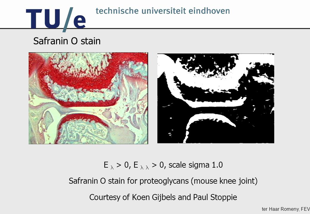 ter Haar Romeny, FEV Safranin O stain E > 0, E > 0, scale sigma 1.0 Safranin O stain for proteoglycans (mouse knee joint) Courtesy of Koen Gijbels and Paul Stoppie