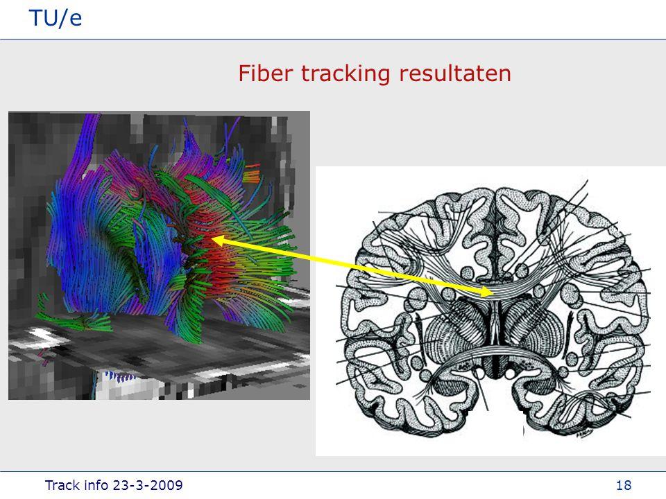 Track info 23-3-2009 TU/e 18 Fiber tracking resultaten