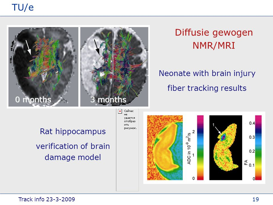 Track info TU/e 19 Diffusie gewogen NMR/MRI 0 months 3 months Neonate with brain injury fiber tracking results Rat hippocampus verification of brain damage model