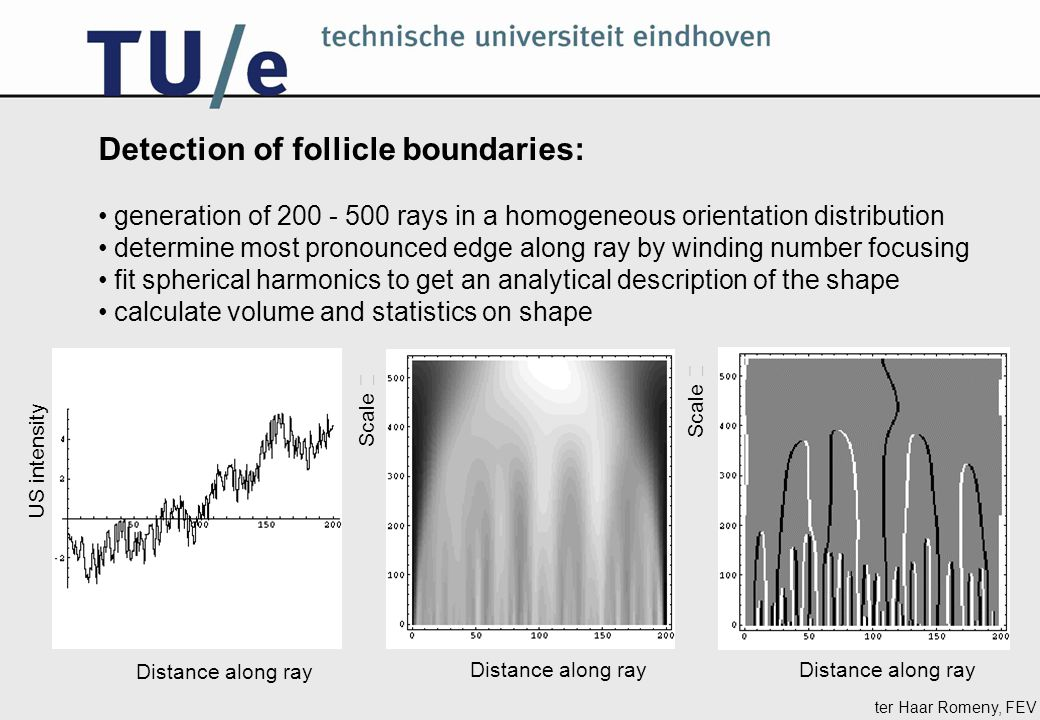 ter Haar Romeny, FEV Detection of follicle boundaries: generation of 200 - 500 rays in a homogeneous orientation distribution determine most pronounce