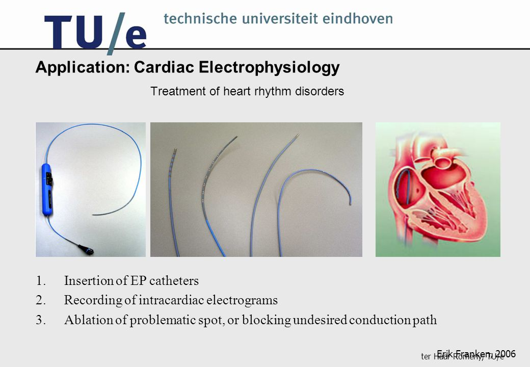 ter Haar Romeny, TU/e Application: Cardiac Electrophysiology Treatment of heart rhythm disorders 1.Insertion of EP catheters 2.Recording of intracardiac electrograms 3.Ablation of problematic spot, or blocking undesired conduction path Erik Franken, 2006
