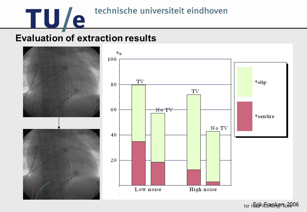 ter Haar Romeny, TU/e Evaluation of extraction results Erik Franken, 2006