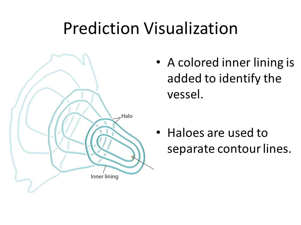 Prediction Visualization A colored inner lining is added to identify the vessel.
