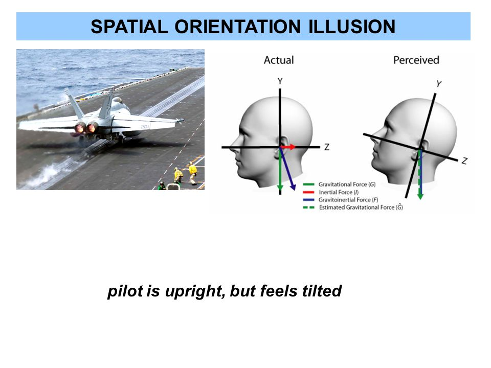 SPATIAL ORIENTATION ILLUSION pilot is upright, but feels tilted