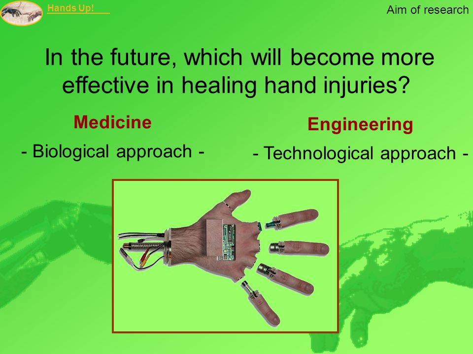 Hands Up! Aim of research In the future, which will become more effective in healing hand injuries? Medicine - Biological approach - Engineering - Tec