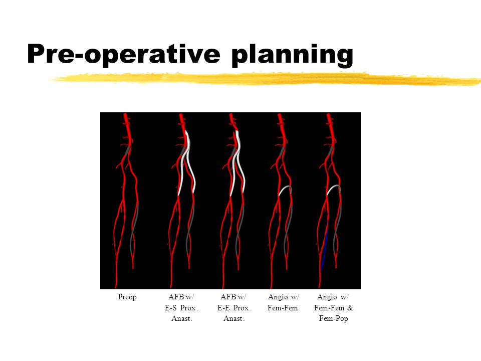 Pre-operative planning Angiow/ Fem-Fem & Fem-Pop AFB w/ E-SProx.