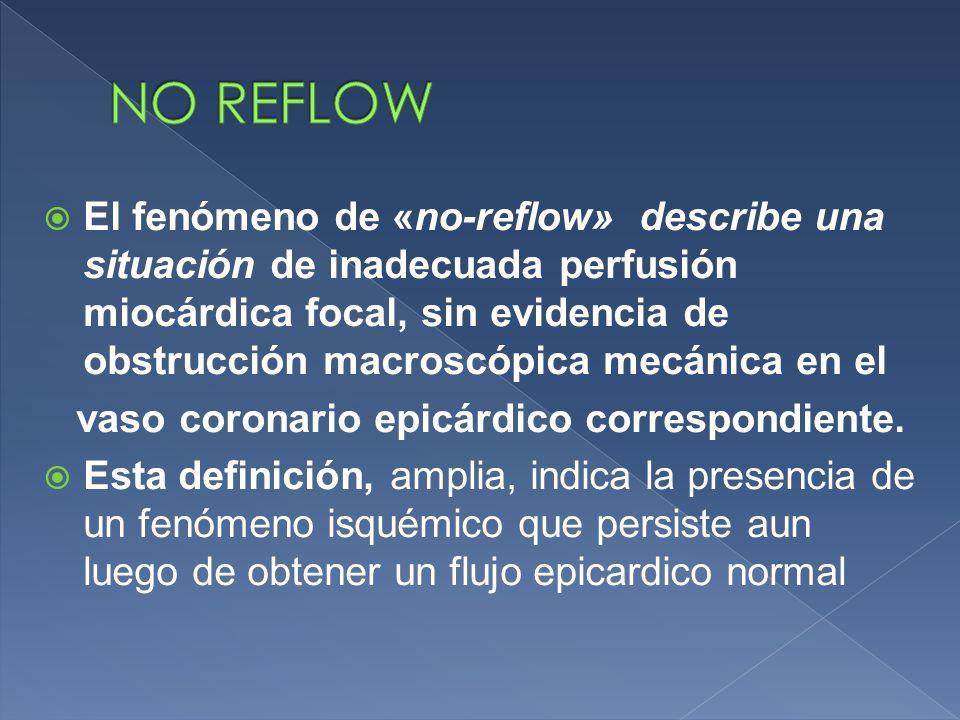  El fenómeno de «no-reflow» describe una situación de inadecuada perfusión miocárdica focal, sin evidencia de obstrucción macroscópica mecánica en el vaso coronario epicárdico correspondiente.