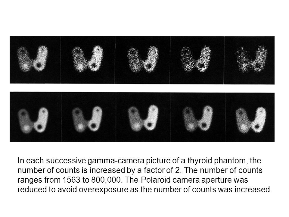 In each successive gamma-camera picture of a thyroid phantom, the number of counts is increased by a factor of 2. The number of counts ranges from 156