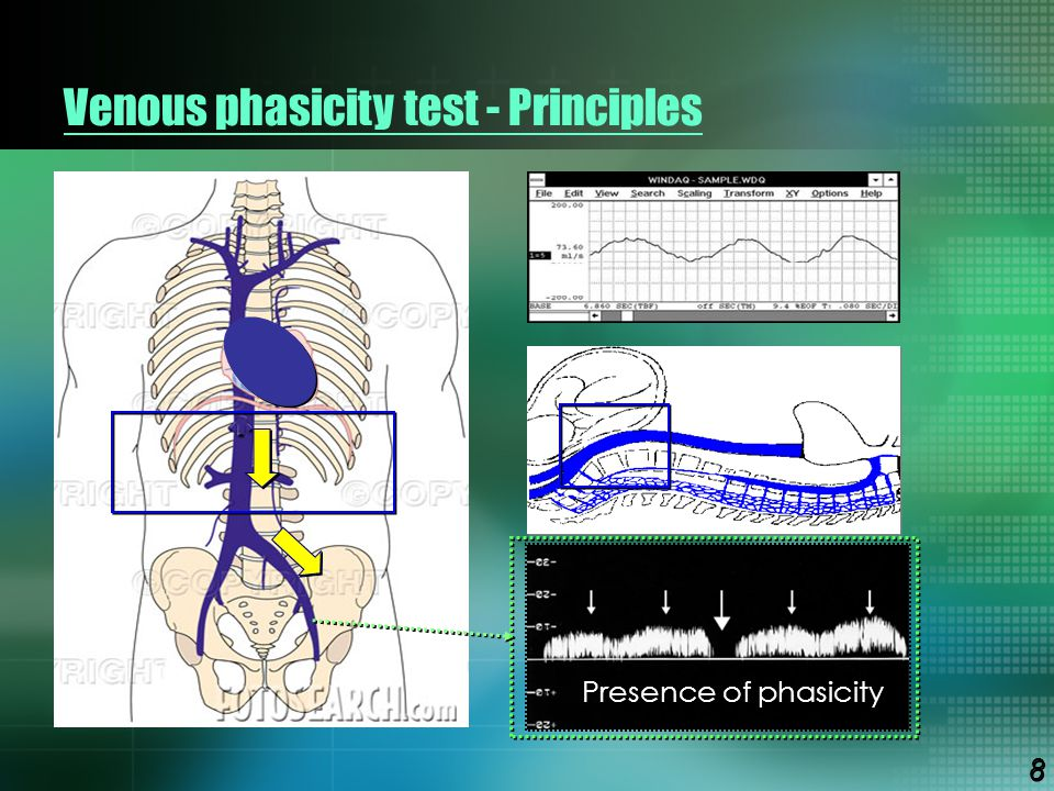 Venous phasicity test - Principles Presence of phasicity 8 8