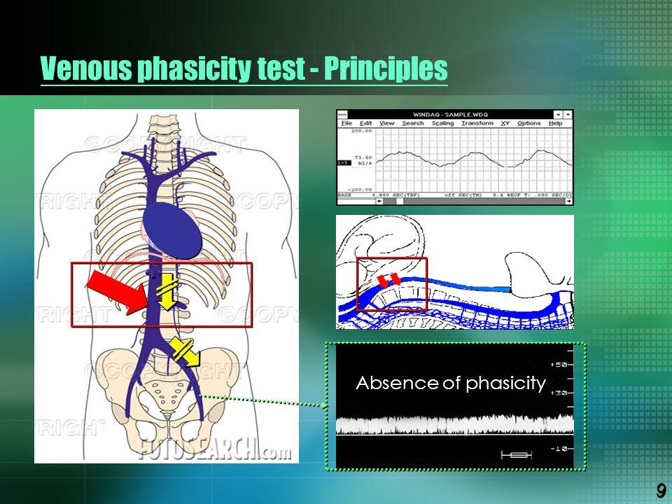 Venous phasicity test - Principles Absence of phasicity 9 9