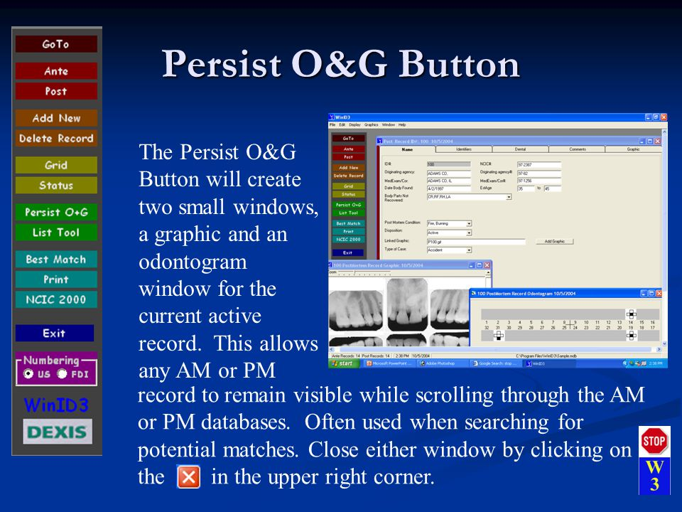 Persist O&G Button The Persist O&G Button will create two small windows, a graphic and an odontogram window for the current active record.