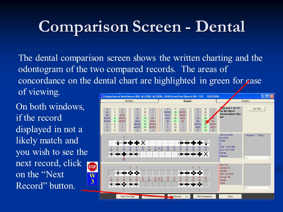 Comparison Screen - Dental The dental comparison screen shows the written charting and the odontogram of the two compared records.