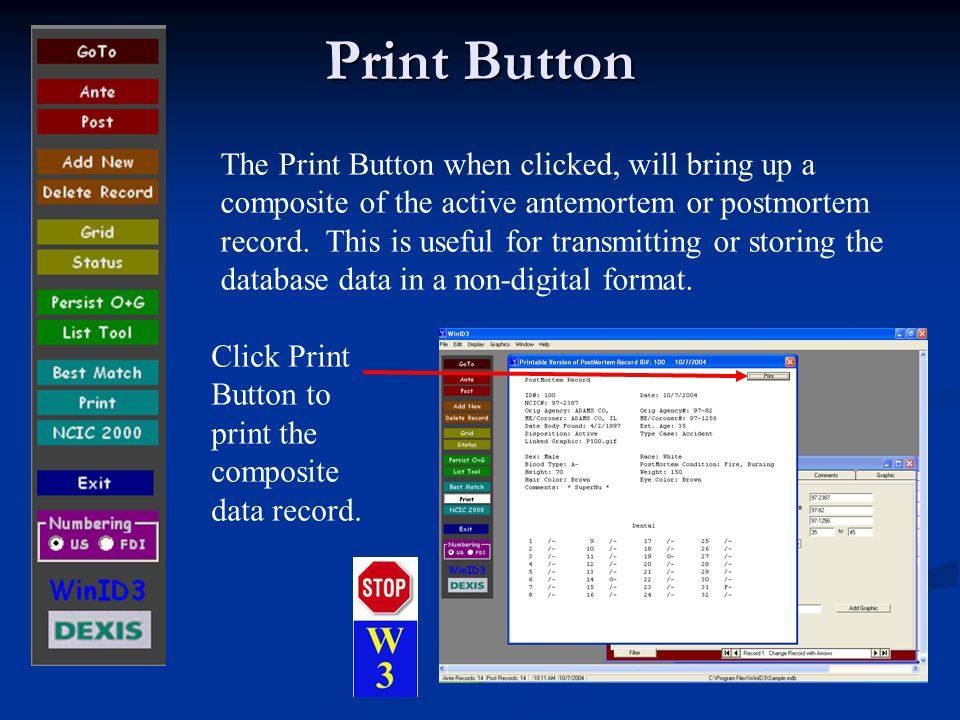 Print Button The Print Button when clicked, will bring up a composite of the active antemortem or postmortem record.