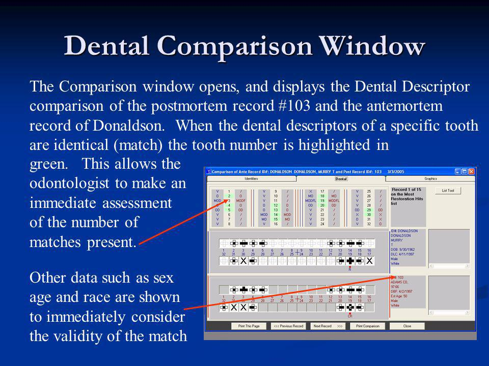 Dental Comparison Window The Comparison window opens, and displays the Dental Descriptor comparison of the postmortem record #103 and the antemortem r