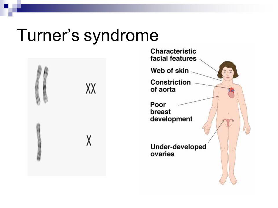 Turner's syndrome