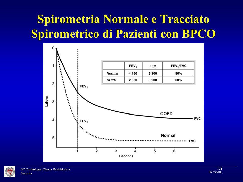 SC Cardiologia Clinica Riabilitativa Sarzana 7/33 db 7/5/2011 Spirometria Normale e Tracciato Spirometrico di Pazienti con BPCO