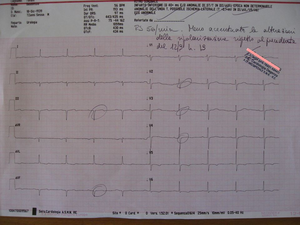 Data: 9 Novembre 2012 Evento: Genova Titolo: added value of GPIIb/IIIa RB in ACS Autore: Stefano Savonitto