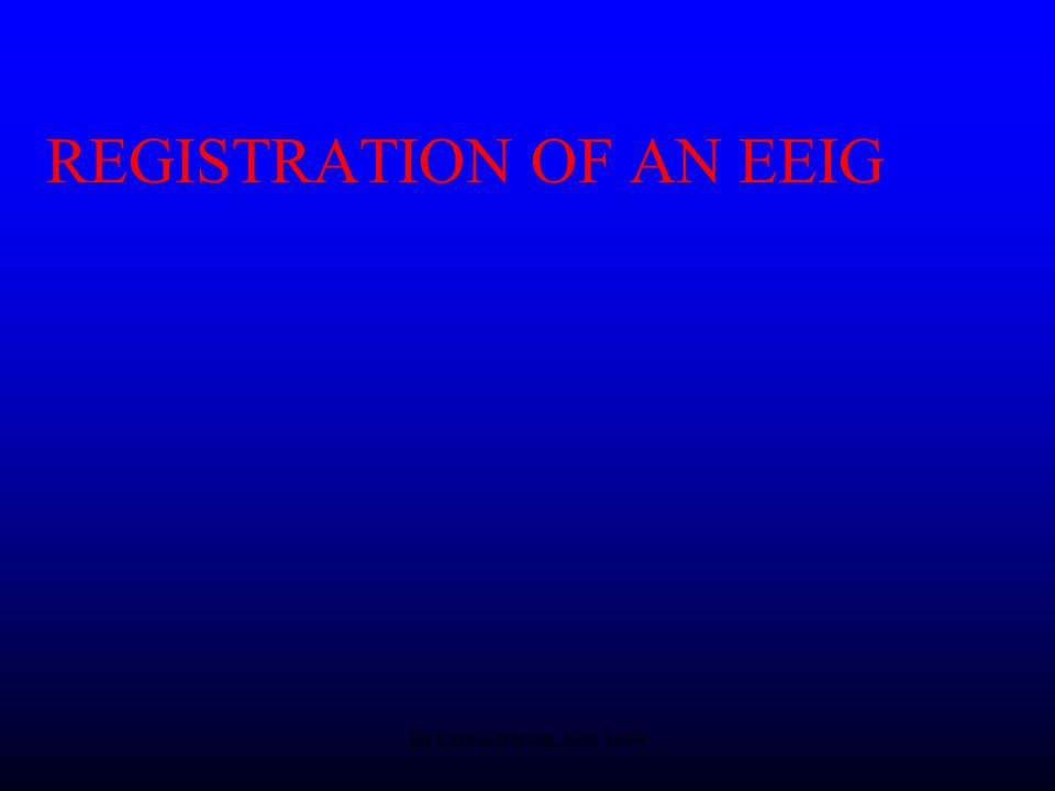 Dr Lars Karlsson, Nov 1999 REGISTRATION OF AN EEIG