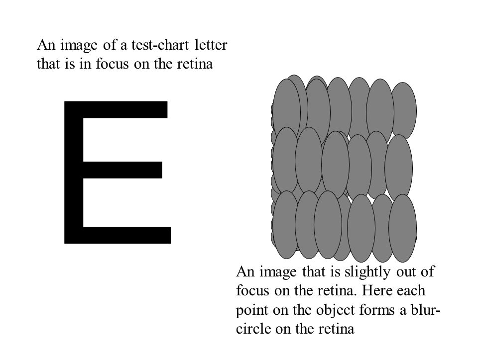 EE An image of a test-chart letter that is in focus on the retina An image that is slightly out of focus on the retina. Here each point on the object