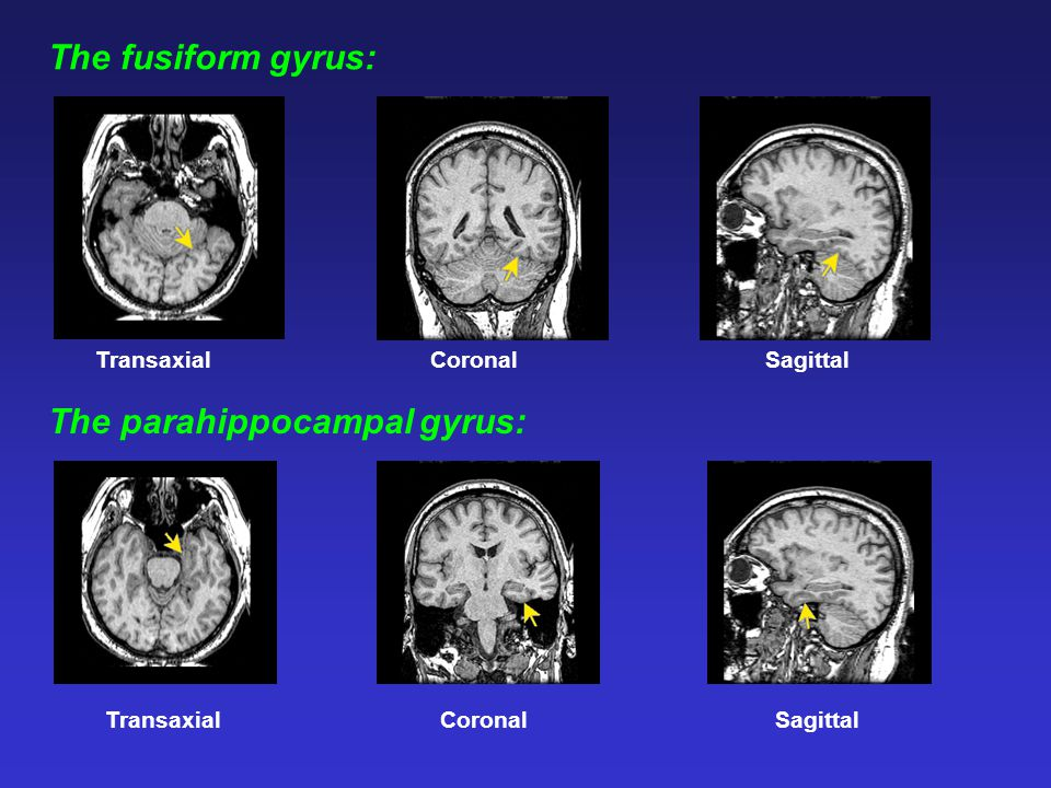 TransaxialCoronalSagittal The fusiform gyrus: The parahippocampal gyrus: TransaxialCoronalSagittal