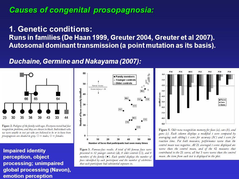 Causes of congenital prosopagnosia: 1.