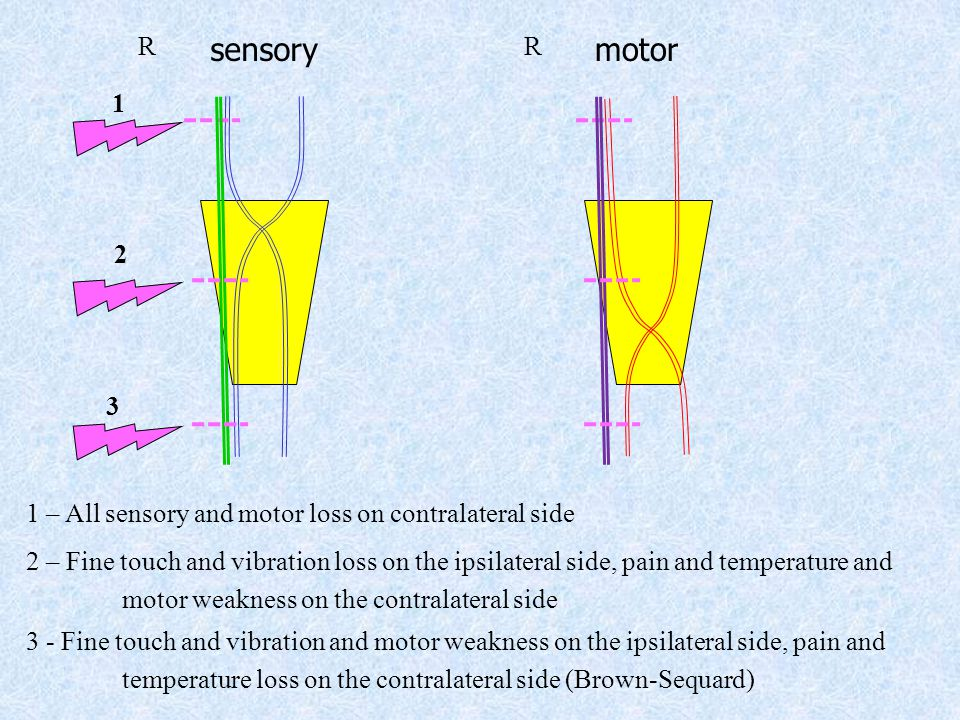 sensorymotor 1 – All sensory and motor loss on contralateral side 1 RR 3 3 - Fine touch and vibration and motor weakness on the ipsilateral side, pain and temperature loss on the contralateral side (Brown-Sequard) 2 2 – Fine touch and vibration loss on the ipsilateral side, pain and temperature and motor weakness on the contralateral side