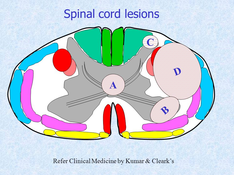 D A B Spinal cord lesions C Refer Clinical Medicine by Kumar & Cleark's