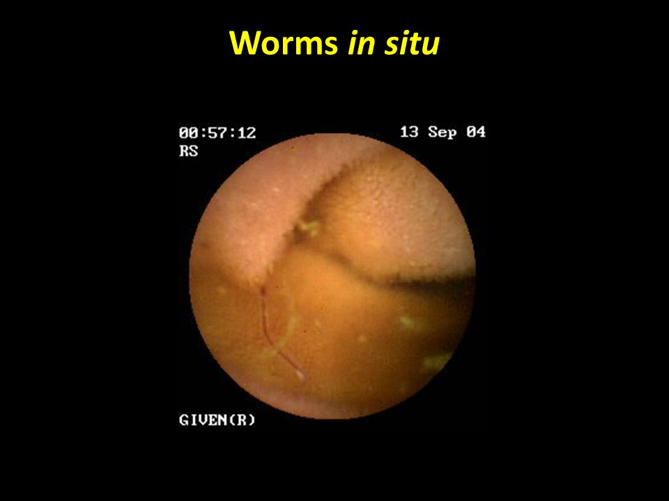 Worms in situ