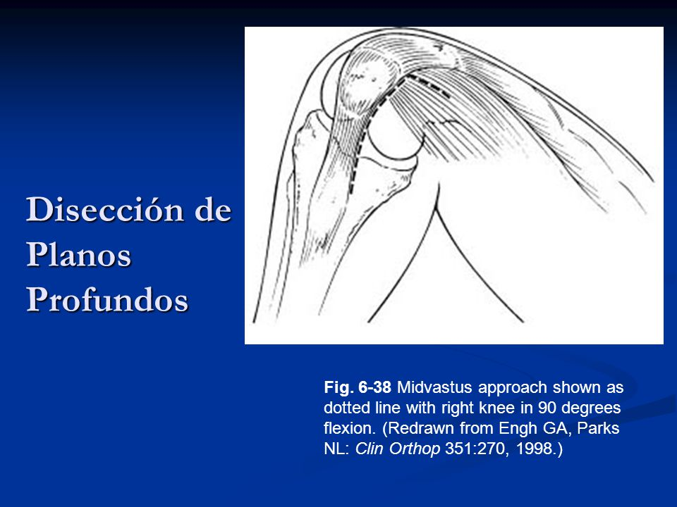 Disección de Planos Profundos Fig. 6-38 Midvastus approach shown as dotted line with right knee in 90 degrees flexion. (Redrawn from Engh GA, Parks NL