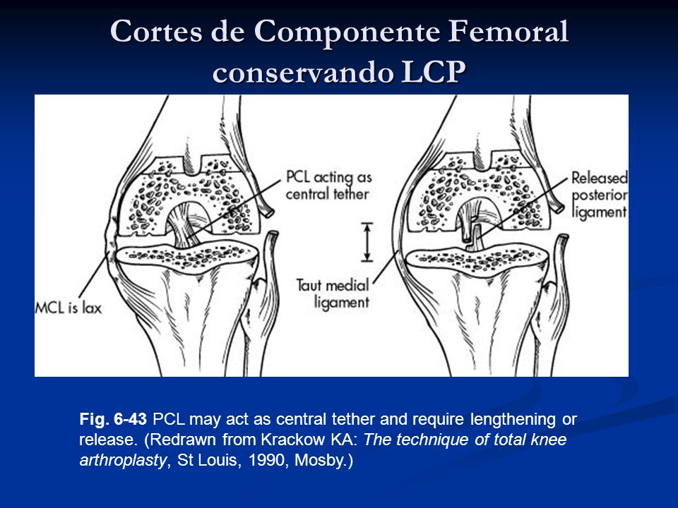Cortes de Componente Femoral conservando LCP Fig. 6-43 PCL may act as central tether and require lengthening or release. (Redrawn from Krackow KA: The